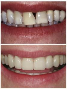 Gap-in-teeth1-before and after
