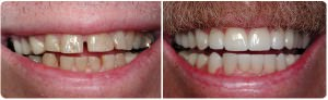 Male Veneer before and after