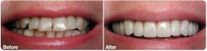 Veneer before after May 17