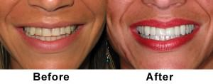 veneers-before-and-after-teeth #2
